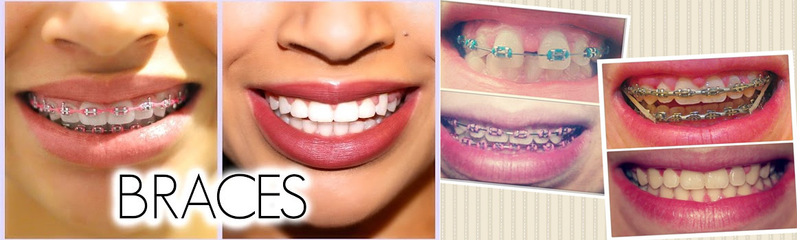 //www.dohadentalcenter.com/wp-content/uploads/2017/04/before_after.jpg