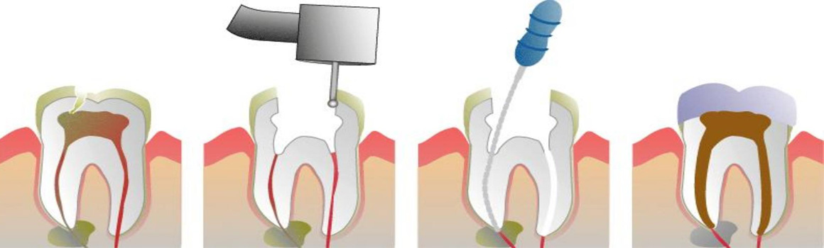 //www.dohadentalcenter.com/wp-content/uploads/2017/04/root_canal_before_after.jpg