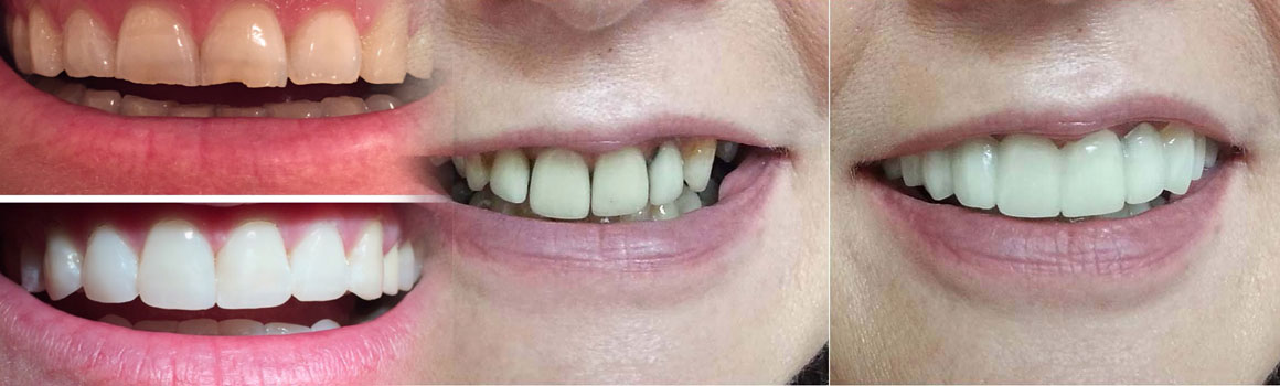 //www.dohadentalcenter.com/wp-content/uploads/2017/04/veneer_before_after.jpg